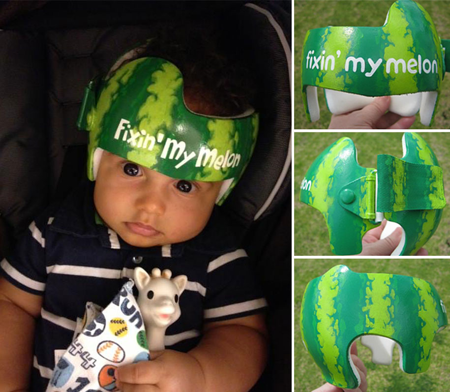 Artist Decorates Babies Head Shaping Helmets With Cute Paintings Demilked