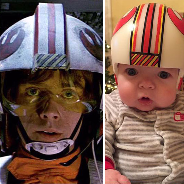 craniosynostosis-head-shaping-star-wars-helmets-mikesweeney-2