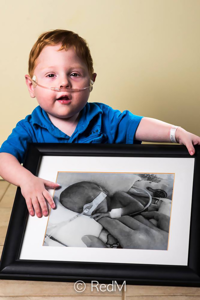premature-baby-portraits-frame-les-premas-red-methot-10