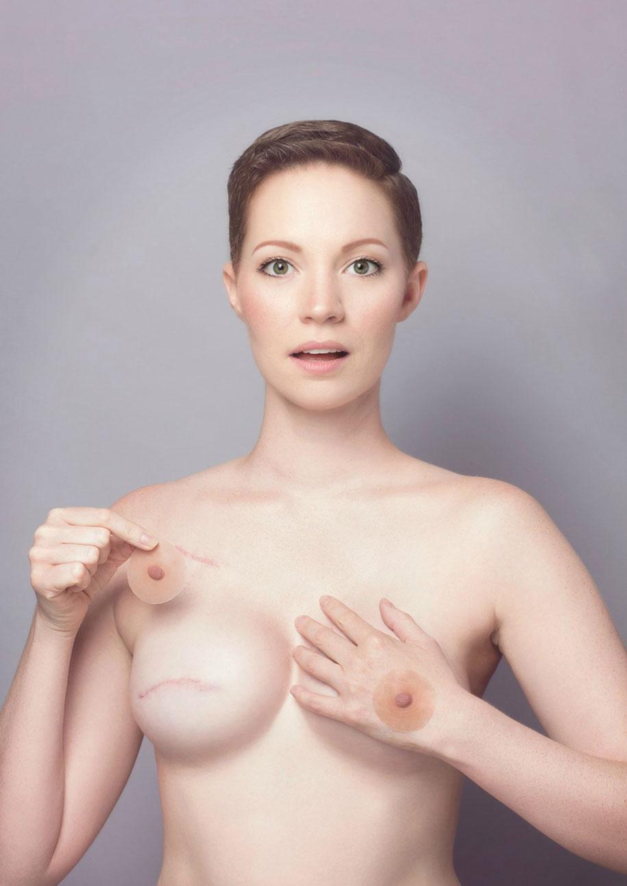 cancer-mastectomy-photo-series-my-breast-choice-aniela-mcguinness-3