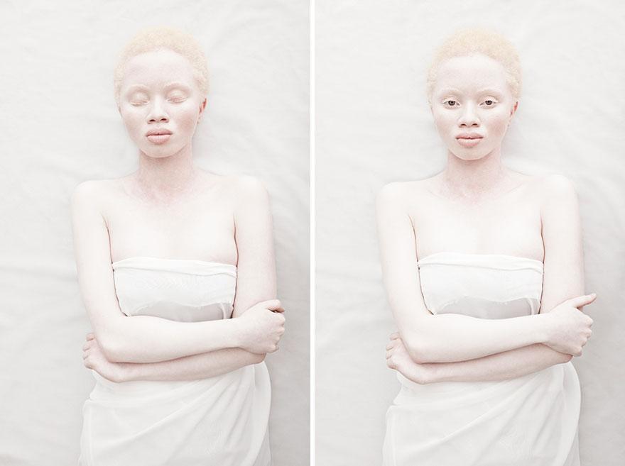 albinism-beautiful-albino-people-1