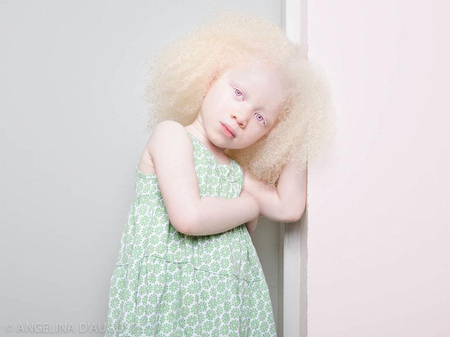 albinism-beautiful-albino-people-10