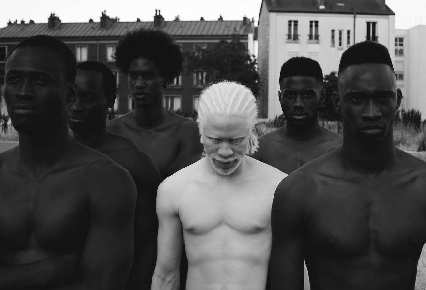 albinism-beautiful-albino-people-15