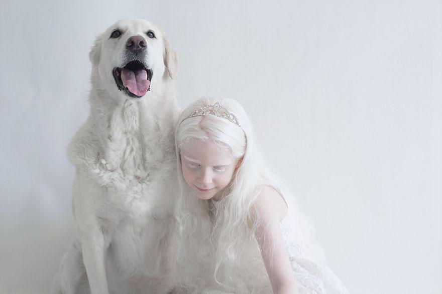 albinism-beautiful-albino-people-4