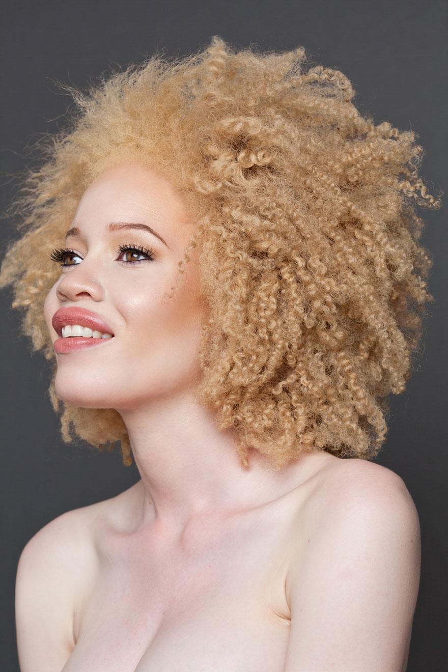 albinism-beautiful-albino-people-6