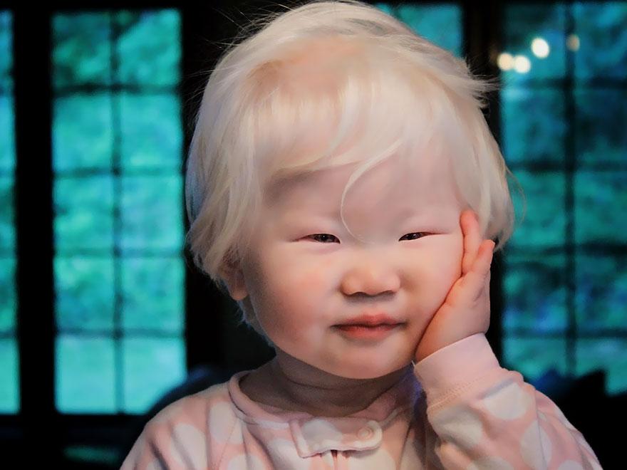 albinism-beautiful-albino-people-7