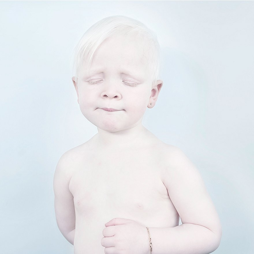 albinism-beautiful-albino-people-8