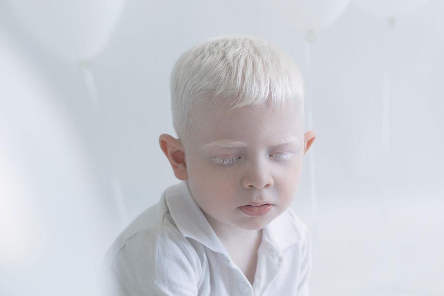 beautiful-albino-people-porcelain-beauty-yulia-taits-3
