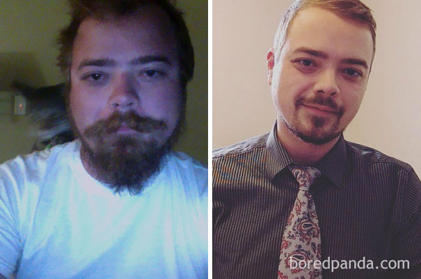 before-after-sobriety-photos-alcoholism-1