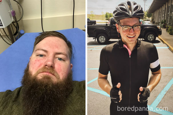 before-after-sobriety-photos-alcoholism-8