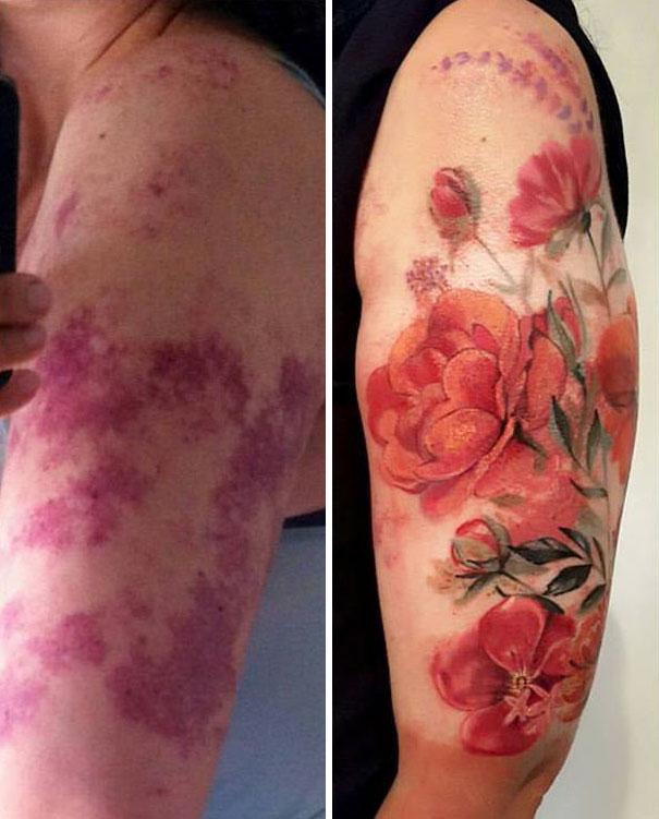 creative-tattoos-birthmark-cover-ups-8