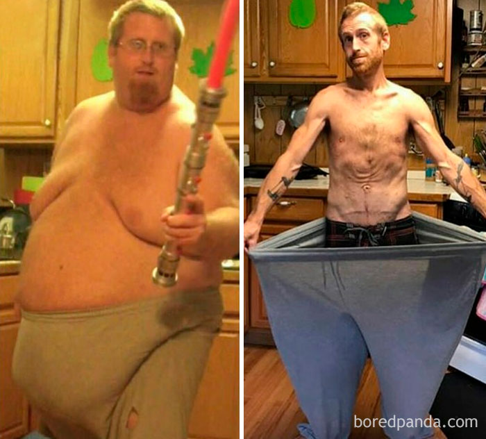 50 Before And After Weight Loss Pictures That Surprisingly Show The Same Person Demilked