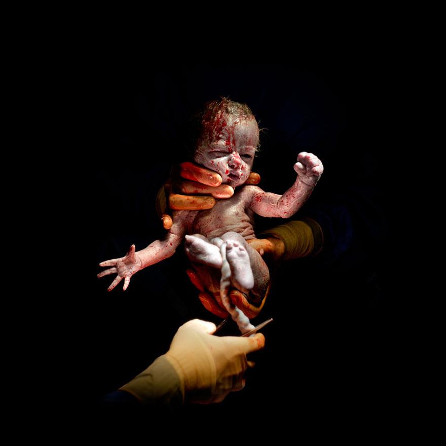 newborn-photos-c-section-infant-cesar-christian-berthelot-7