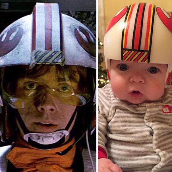 craniosynostosis-head-shaping-star-wars-helmets-mikesweeney-2