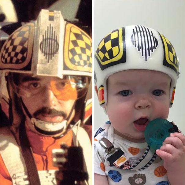craniosynostosis-head-shaping-star-wars-helmets-mikesweeney-3