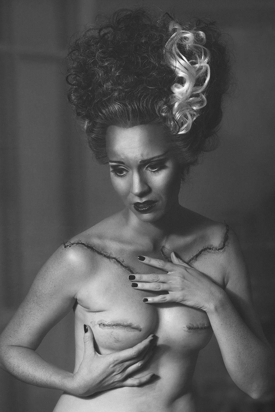 cancer-mastectomy-photo-series-my-breast-choice-aniela-mcguinness-2
