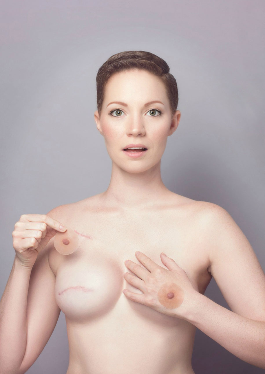 cancer-mastectomy-photo-series-my-breast-choice-aniela-mcguinness-3