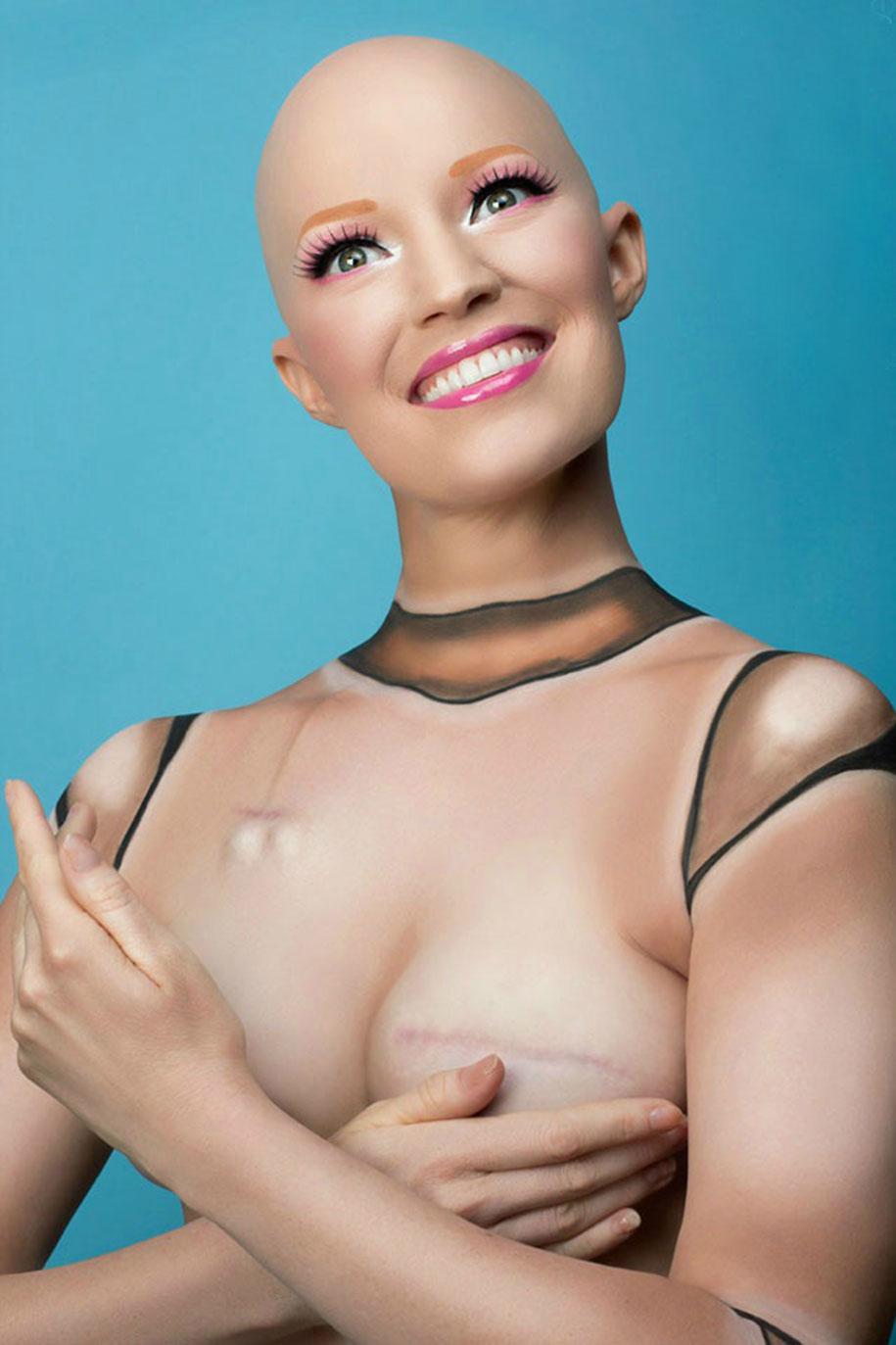 cancer-mastectomy-photo-series-my-breast-choice-aniela-mcguinness-4
