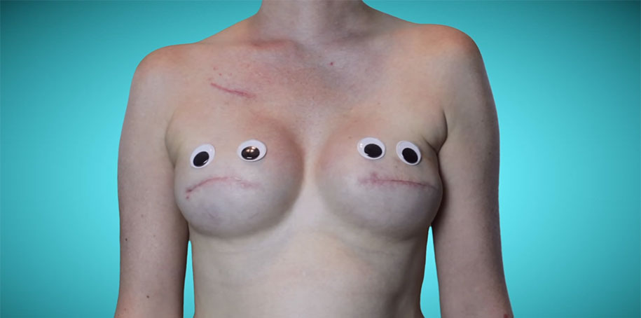 cancer-mastectomy-photo-series-my-breast-choice-aniela-mcguinness-6