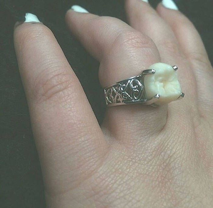 wisdom-tooth-wedding-engagement-ring-carlee-leifkes-lucas-unger-3