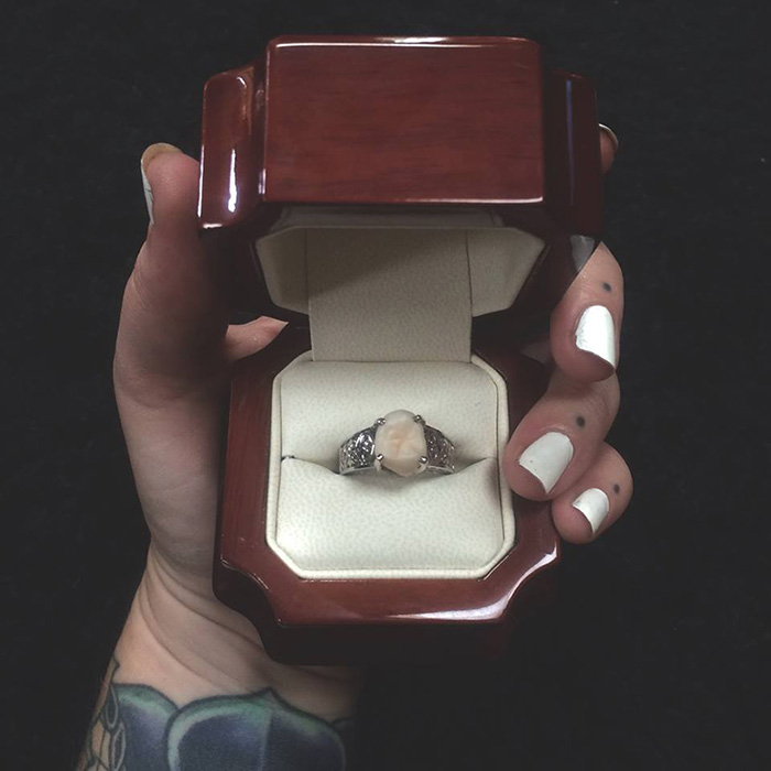 wisdom-tooth-wedding-engagement-ring-carlee-leifkes-lucas-unger-6
