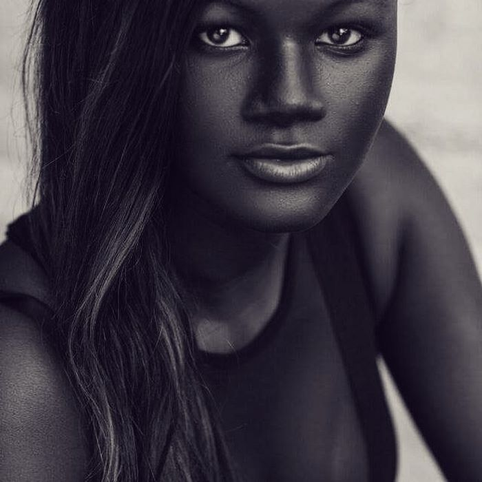 Girl Was Bullied For Her Incredibly Dark Skin Now She