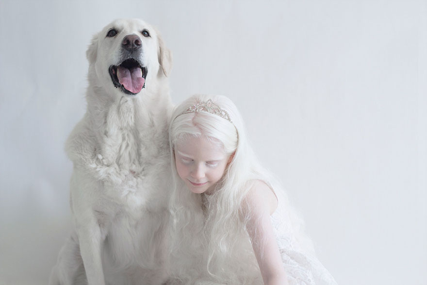 albinism-beautiful-albino-people-4