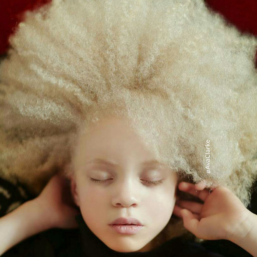 albinism-beautiful-albino-people-9