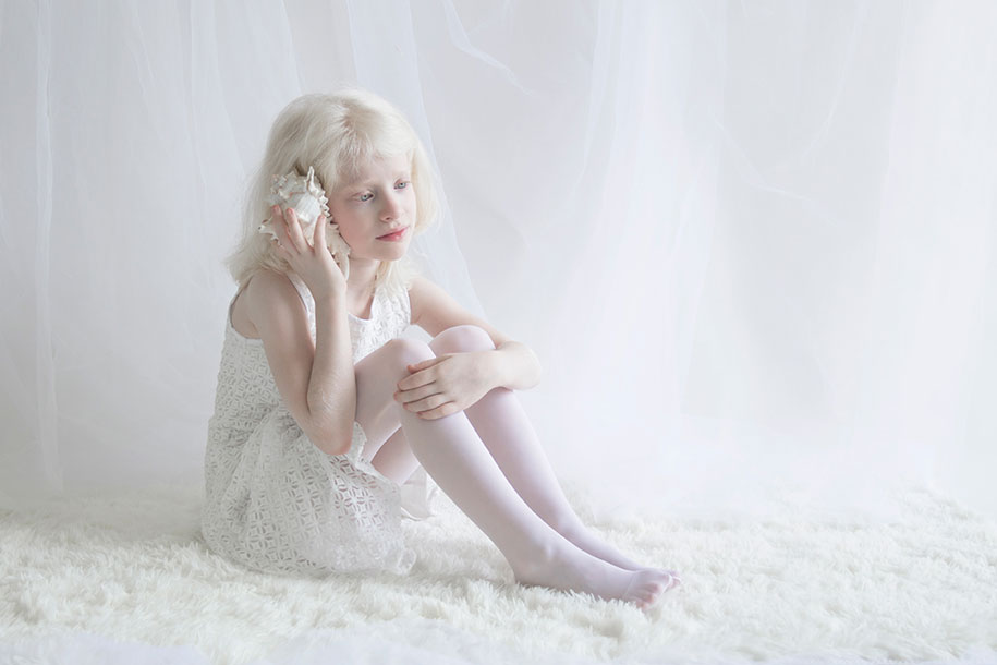 beautiful-albinos-Pessoas-porcelana-Beauty-yulia-Taits-10
