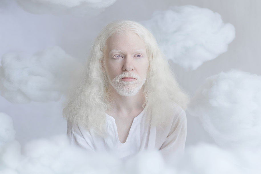 beautiful-albinos-Pessoas-porcelana-Beauty-yulia-Taits-4