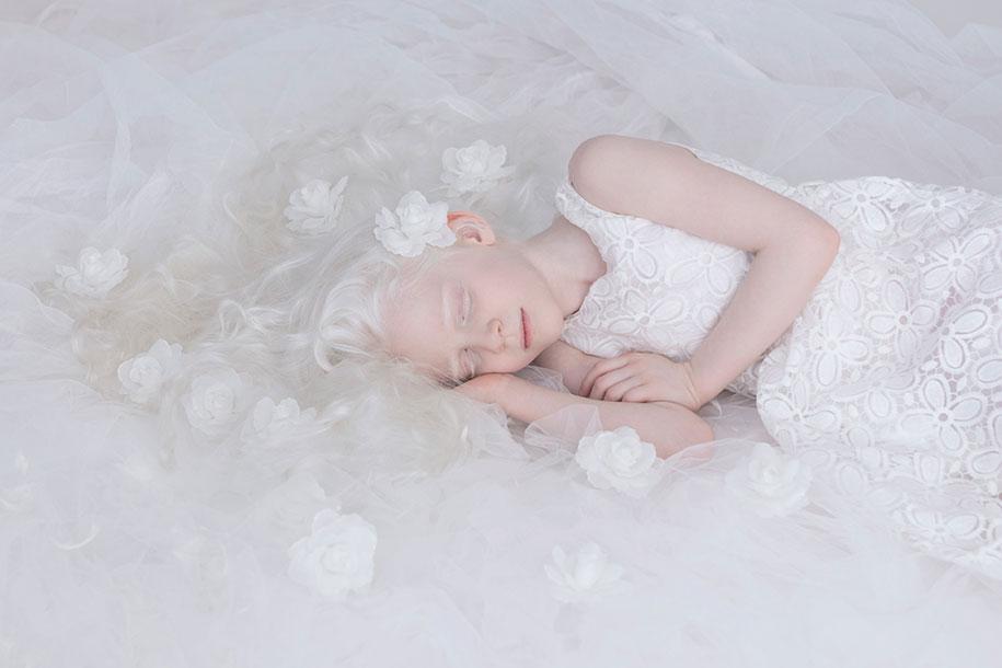 beautiful-albinos-Pessoas-porcelana-Beauty-yulia-Taits-5