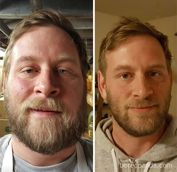before-after-sobriety-photos-alcoholism-6