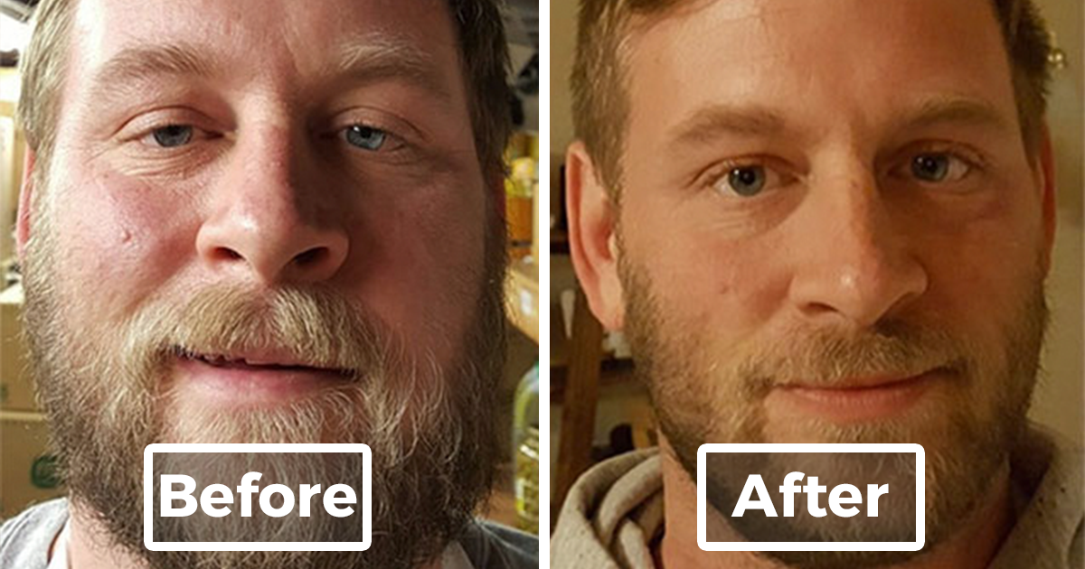 Photo Series Shows What Happens When You Stop Drinking (10