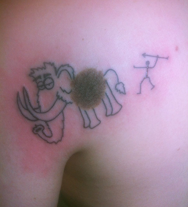 creative-tattoos-birthmark-cover-ups-3