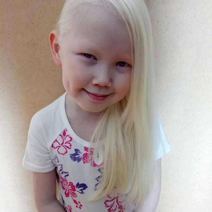 8yearold albino �snow white� from siberia takes fashion