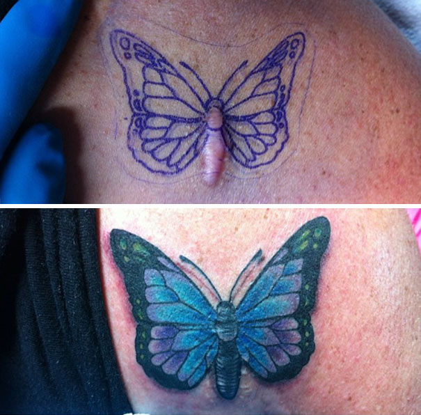 10 amazing scar cover up tattoos part 5 for Scar tattoo cover up