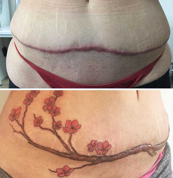 10 amazing scar cover up tattoos part 6 for Scar tattoo cover up