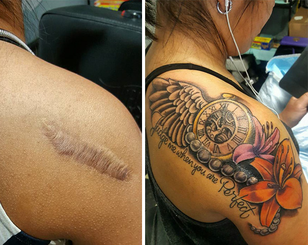 10 amazing scar cover up tattoos part 7 for Scar tattoo cover up