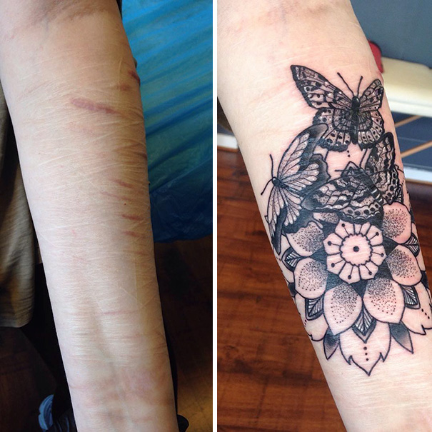 Tattoo Ideas You Can Hide: 10+ Amazing Scar Cover-Up Tattoos