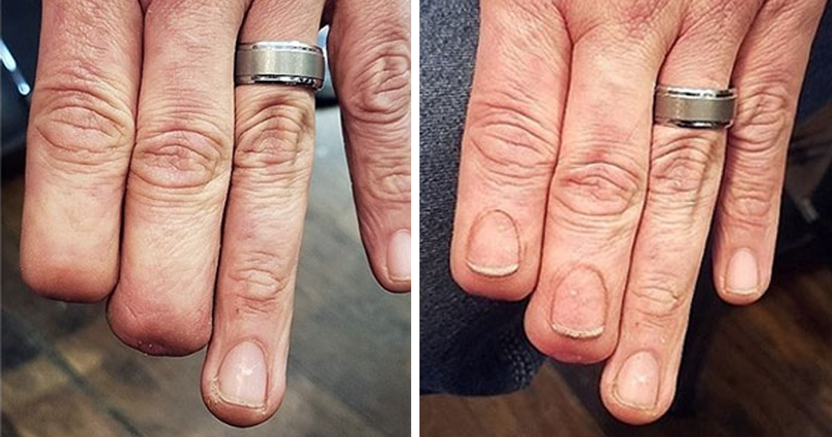 50 Times People Had Their Scars And Birthmarks Covered Up