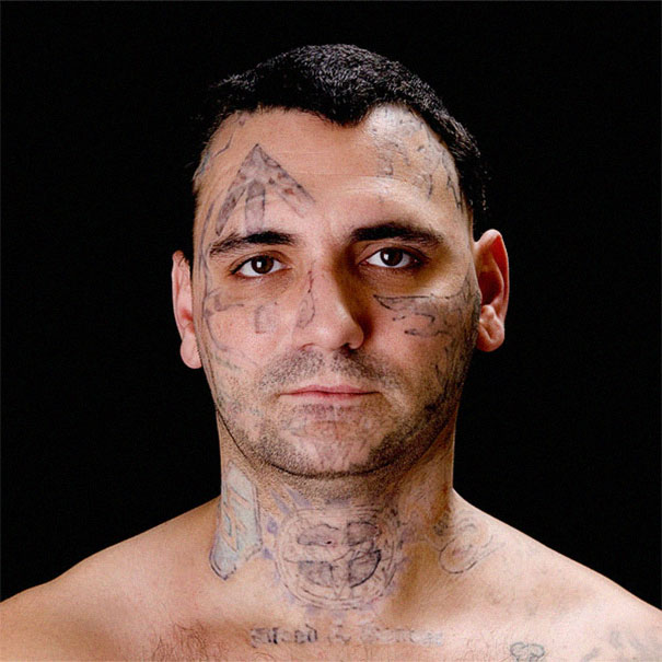 This Ex-Skinhead Removed All Of His Racist Face Tattoos After