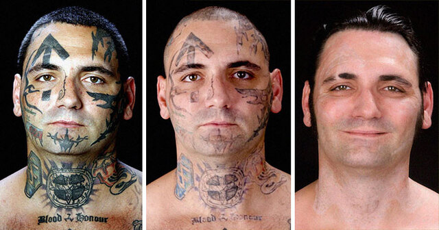 This Ex Skinhead Removed All Of His Racist Face Tattoos