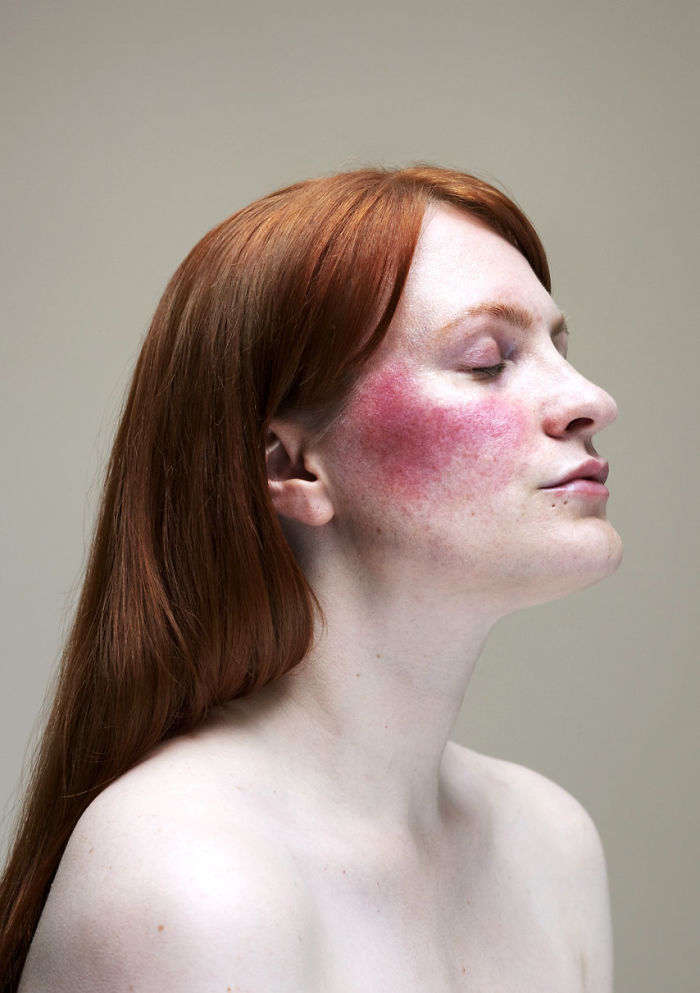 28 Beautiful Photos Of Women With Skin Conditions By Photographer Sophie Harris Taylor Demilked