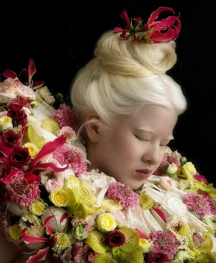 Albino Girl Gets Abandoned As A Baby, Grows Up To Become A Vogue Model (20 Pics)