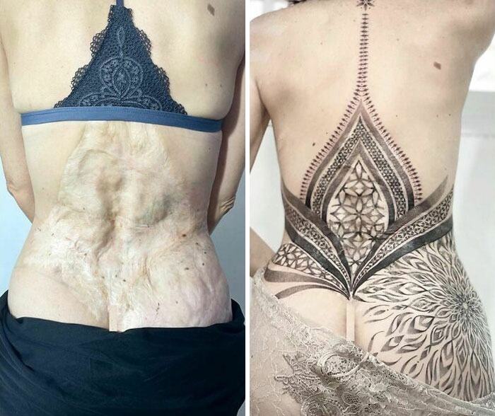 30 Times Tattoo Artists Made Incredible Scar And Birthmark Cover Up Tattoos (New Pics)