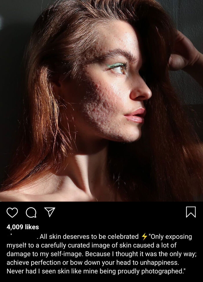 A Scandinavian Online Store Has Found A True Natural Beauty To Model For Them